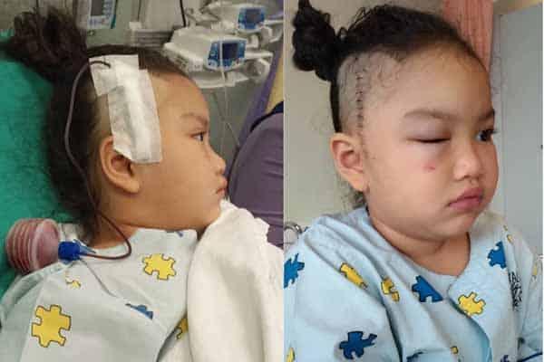 Lebih 20 kali diserang strok, pembedahan cara terakhir buat Cyra kembali sembuh